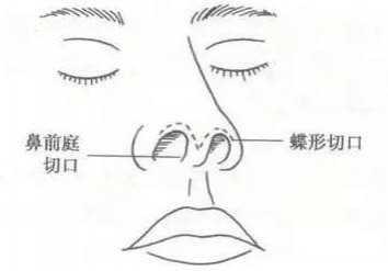 美容隆鼻 上海玫瑰医疗美容医院隆鼻怎么样